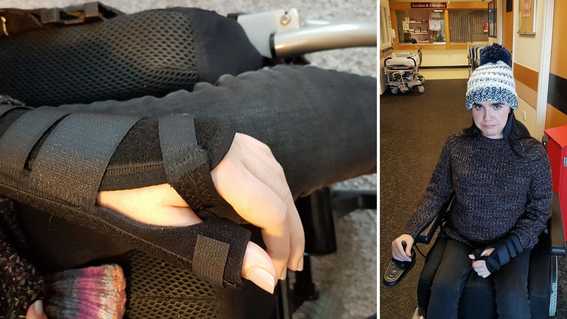 Emma sitting in hospital with a fractured thumb at Borders General Hospital in Melrose near Airhouses Luxury Lodges in Scottish Borders.