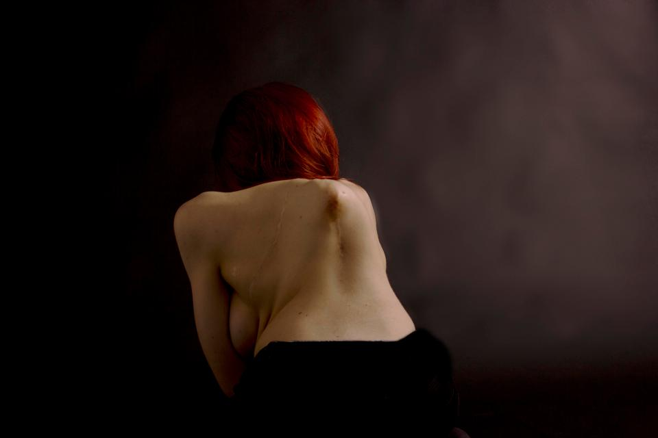Becky Dann of The Undateables models in her photography project 'I'm fine' showing her curved spine due to scoliosis.